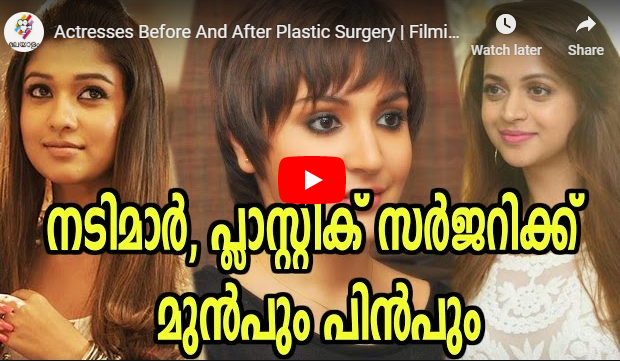 Actresses Before And After Plastic Surgery