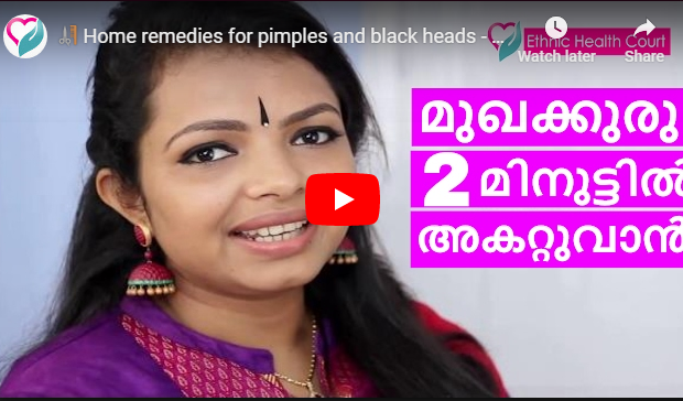 Pimple : Home Remedies